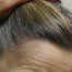 Female Hairline Lowering Possible?