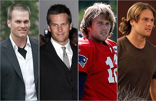 Tom Brady Hair Transplant Rumors Dr Rahal
