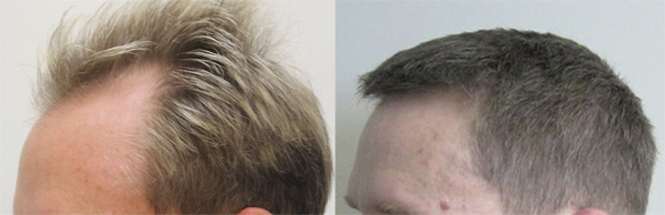 A picture of Craig from the side, before and after his hair transplant by Dr. Rahal.
