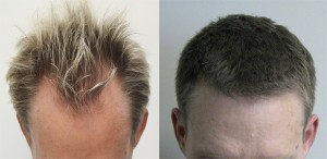 A picture of Craig before his hair transplant and after with the Dr. Rahal FUE results.