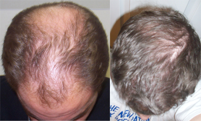 A picture of Bill Seemiller before and after his fourth hair transplant.