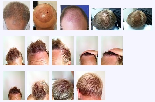A group of hair transplant photos posted on the hair loss forum by a patient.