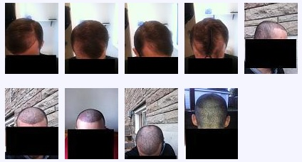A wide range of before and after photos on the hair loss forum, to showcase a patients results.