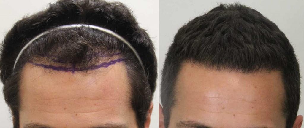 Propecia thinning hair