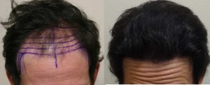 Before & after hair transplant picture without Toppik.