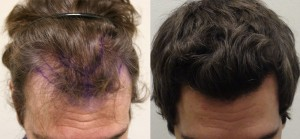 Before & after of FUE