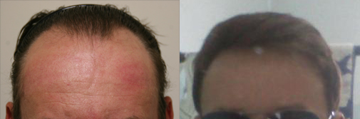 sirius67's hair restoration before and after photos