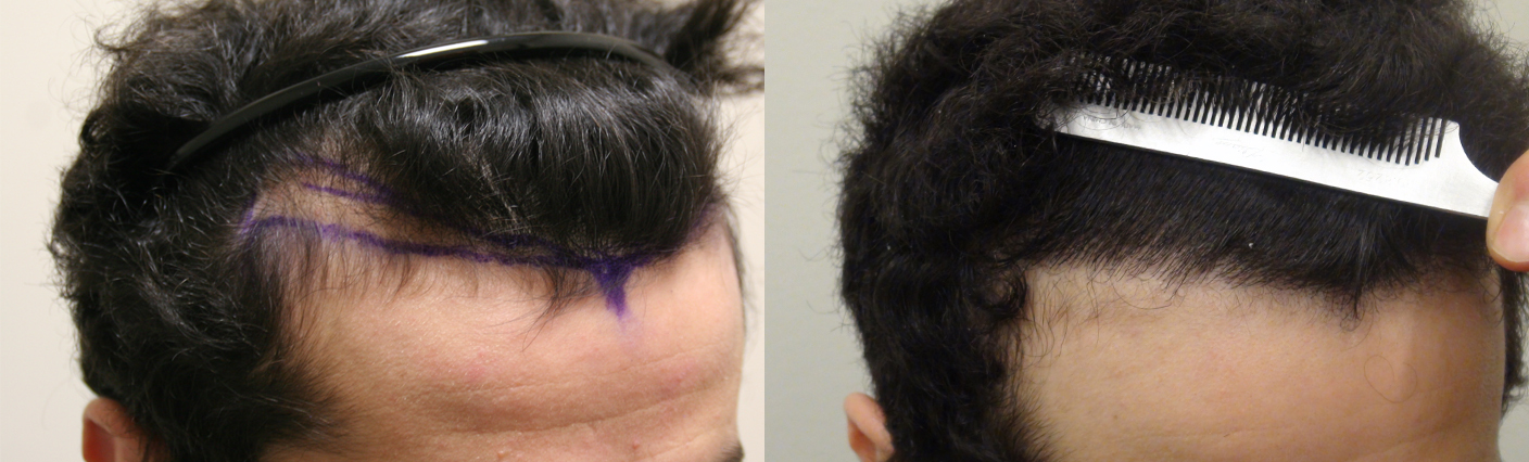 Hair transplant procedure fut