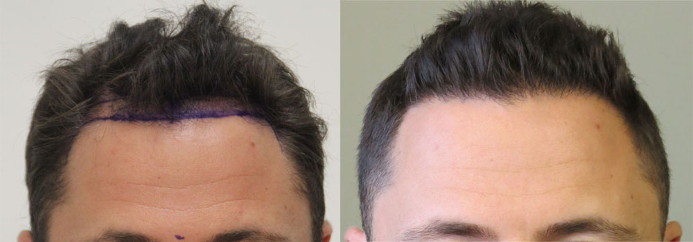 Toronto hair transplantation patient Aaron before and after his Rahal FUE