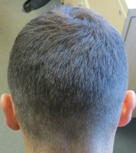 Hair transplant patient's donor area after FUE