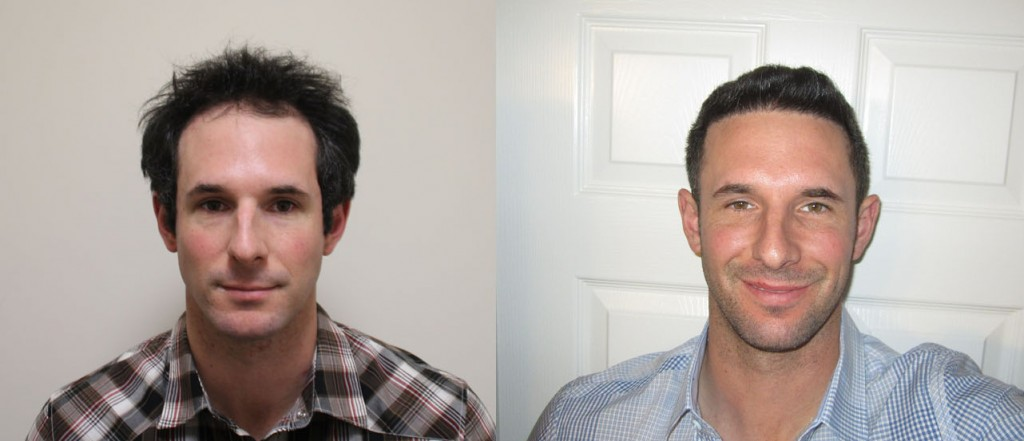 Results from Matthew's hair transplant; the California man before and a year after his procedure