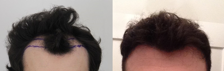 Theluckyllama posted these before and after photos to his personal hair transplant diary, as well as his hair transplant story on the forums