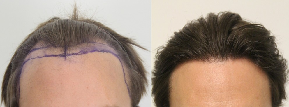 Before and after hair transplant: New York man Dave showing his new hairline