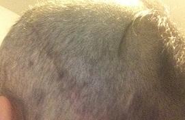Day 21 - scar