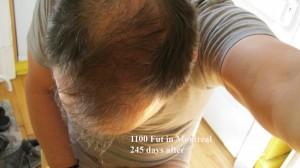 Greffe 1 - 245 jours - 2