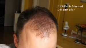 Greffe 1 - 300 jours - 5