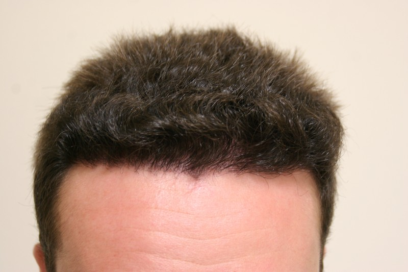 Hair transplant results after 8 months