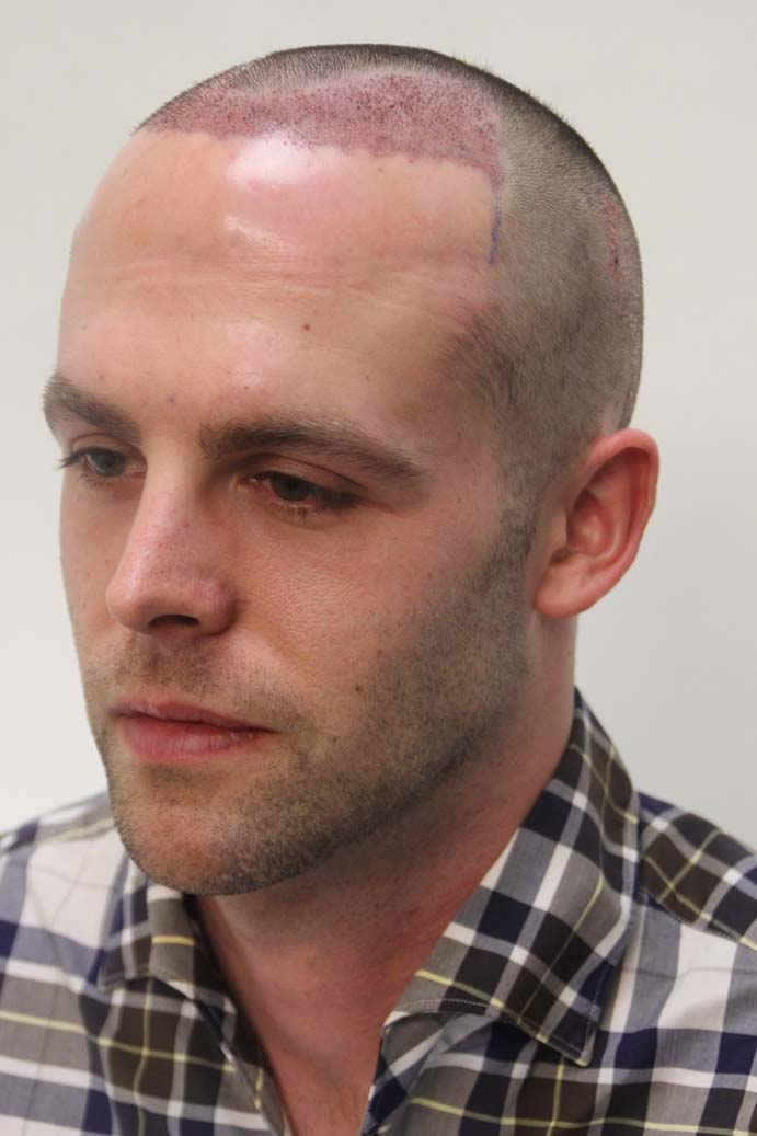 balding crown buzz cut before and after short hairstyle 2013