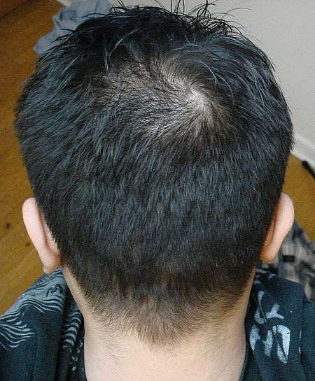 Best Hairstyle For Crown Balding : Year before surgery