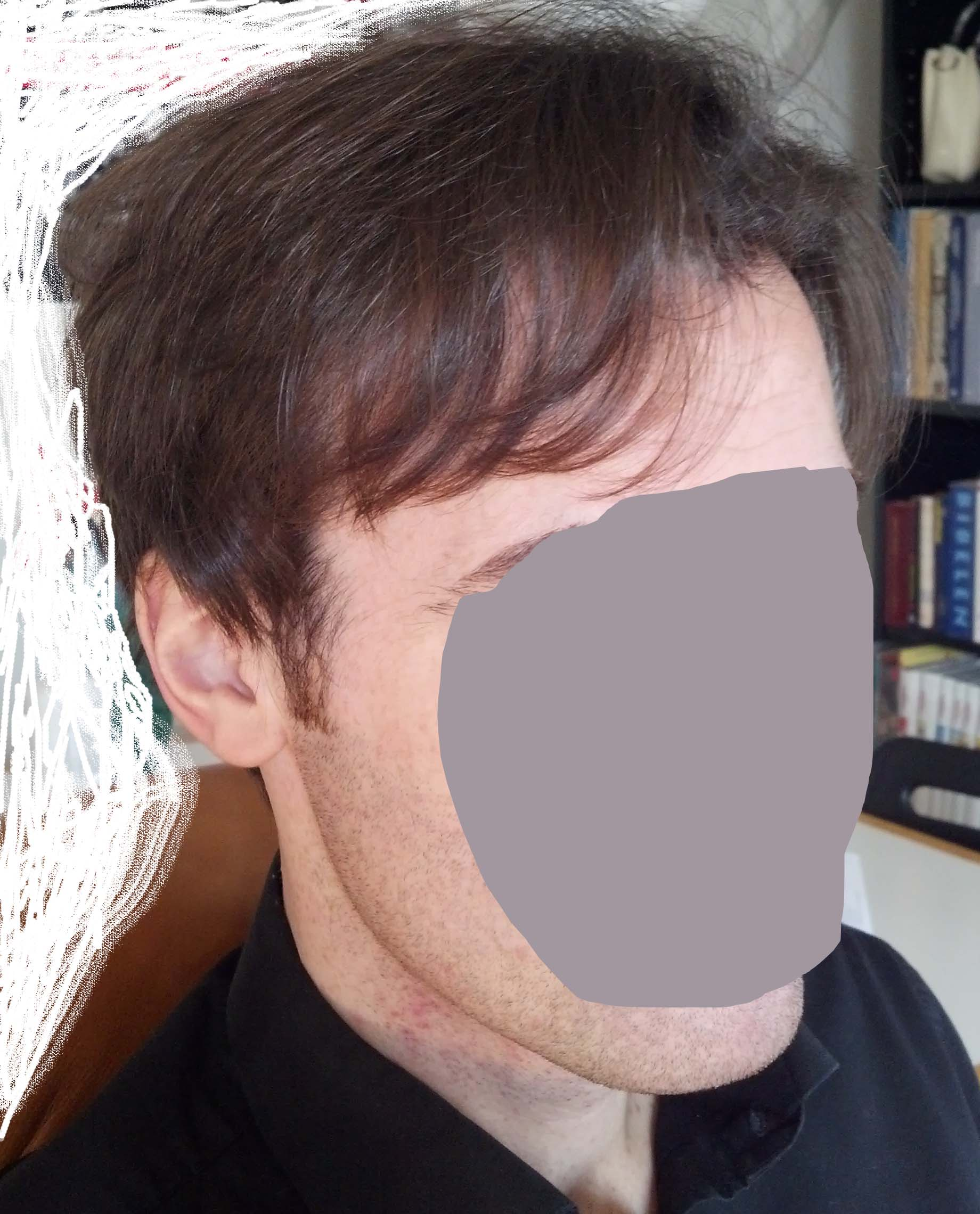 My New Haircut 5 Months After Surgery