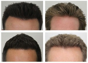 Dr. Rahal hairline examples.