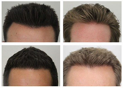 Dr. Rahal hairline examples