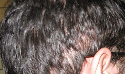 photo of hair transplant shock loss in the donor area