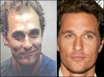 A picture of Matthew McConaughey possibly after a hair transplant
