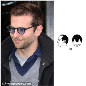 Picture of Bradley Cooper with hair loss