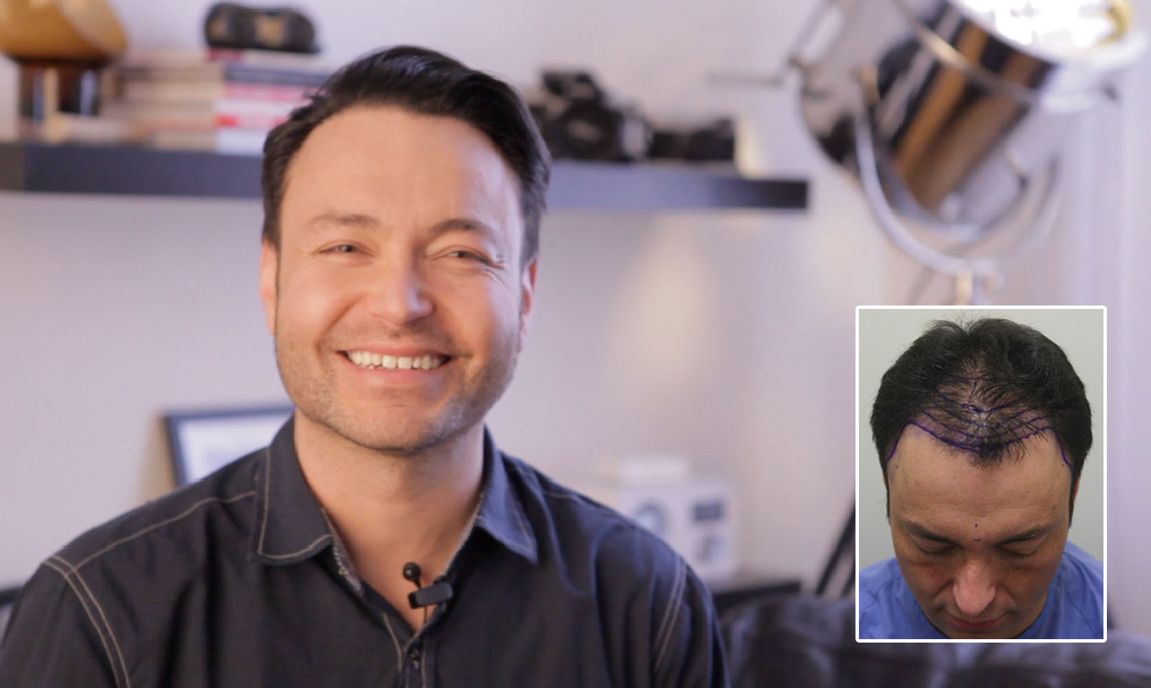 A picture of Adam before & after his hair transplant in Ottawa with Dr. Rahal.