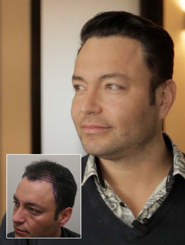 A picture of Adam's hairline before and after his hair replacement.