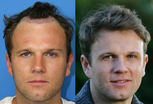 A picture of Spencer Stevenson before and after his hair restoration.