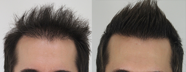 A picture of John before and after his hair transplant in Toronto.