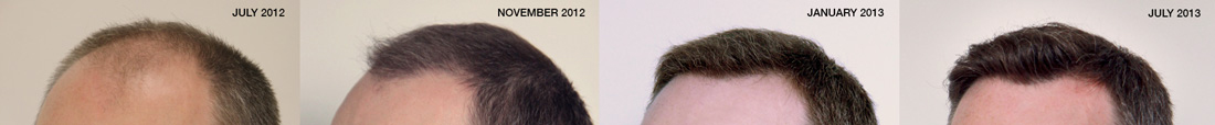 Photos of Ben's hair transplant by Dr. Rahal.