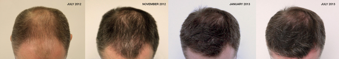 Photos of Ben's hair transplant results progressing over the months.