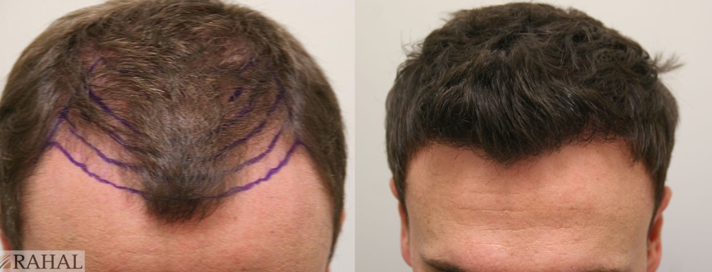 Greg before he had a hair transplant, and 12 months after his treatment.