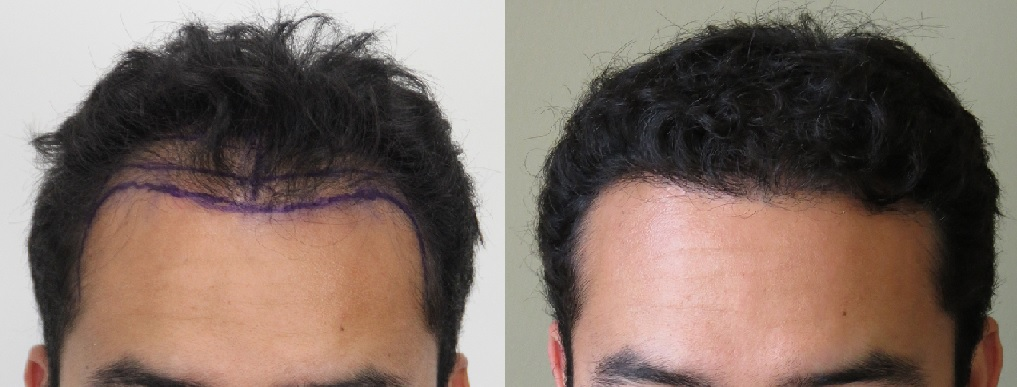 A picture of Santi before and after his hair transplant.