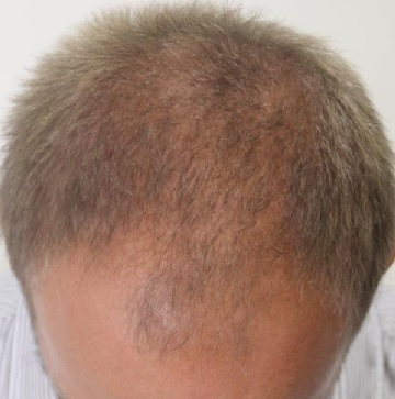 A photo of an FUT patient before his hair transplant.