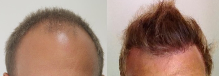 A before and after photo of a hair transplant patient.