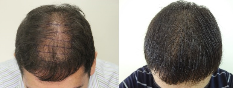 A picture of Mark before and eight months after his hair transplant.