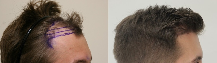 A photo of Mick before and after his hair transplant with Dr. Rahal.