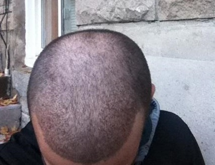 A picture of a hair transplant patient.