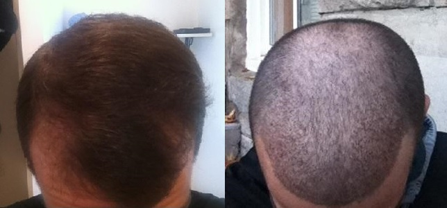 A before and after photo of a patients hair transplant results with Dr. Rahal.