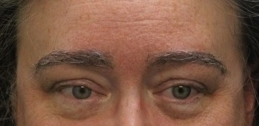 Picture of Carol after her eyebrow transplant.