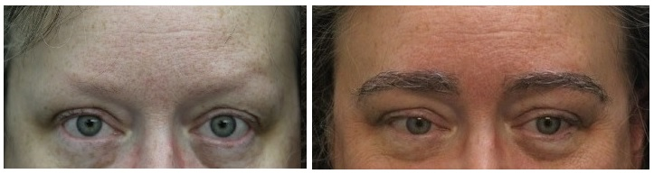 Picture of Carol after her eyebrow transplant with Dr. Rahal.