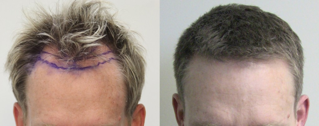 2158 graft Rahal FUE™ on a Norwood 3, 12 months post-op