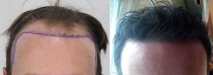 Picture of hair transplant results after 7 months.