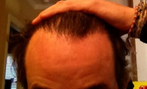 Picture of an uneven hairline.