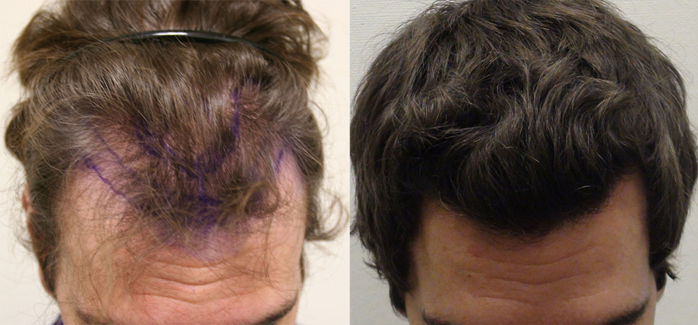 Hair transplant toronto before and after