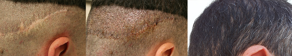 Before and after FUE into scar tissue.